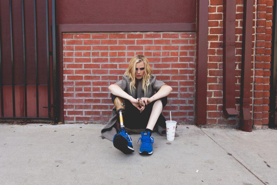 Известной модели Лорен Вассер ампутировали вторую ногу